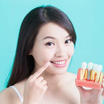 5 Reasons You Need Dental Implants